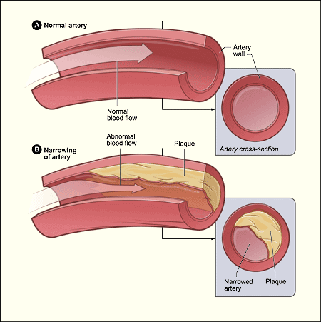A diagram showing a normal artery with normal blood flow and an artery containing plaque build-up.