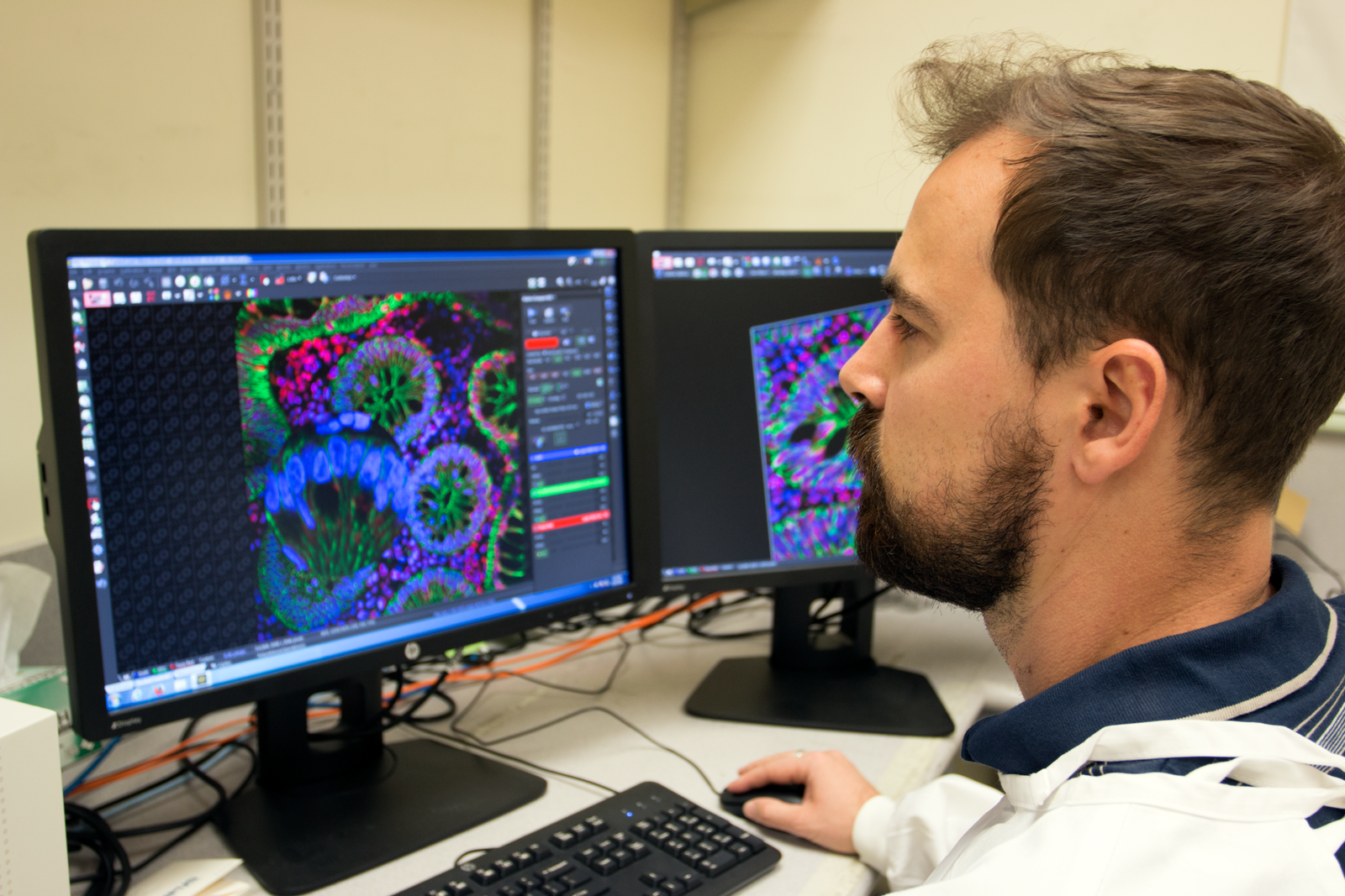 A researcher at a computer using software to analyse biomarkers