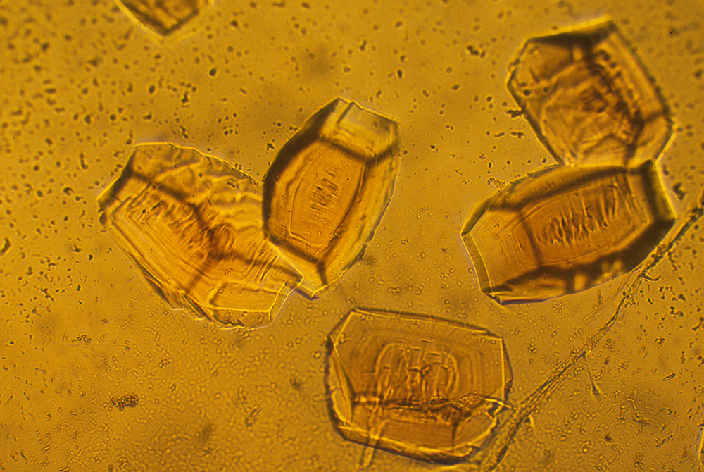 Protein crystals used in X-ray crystallography to determine protein structure.