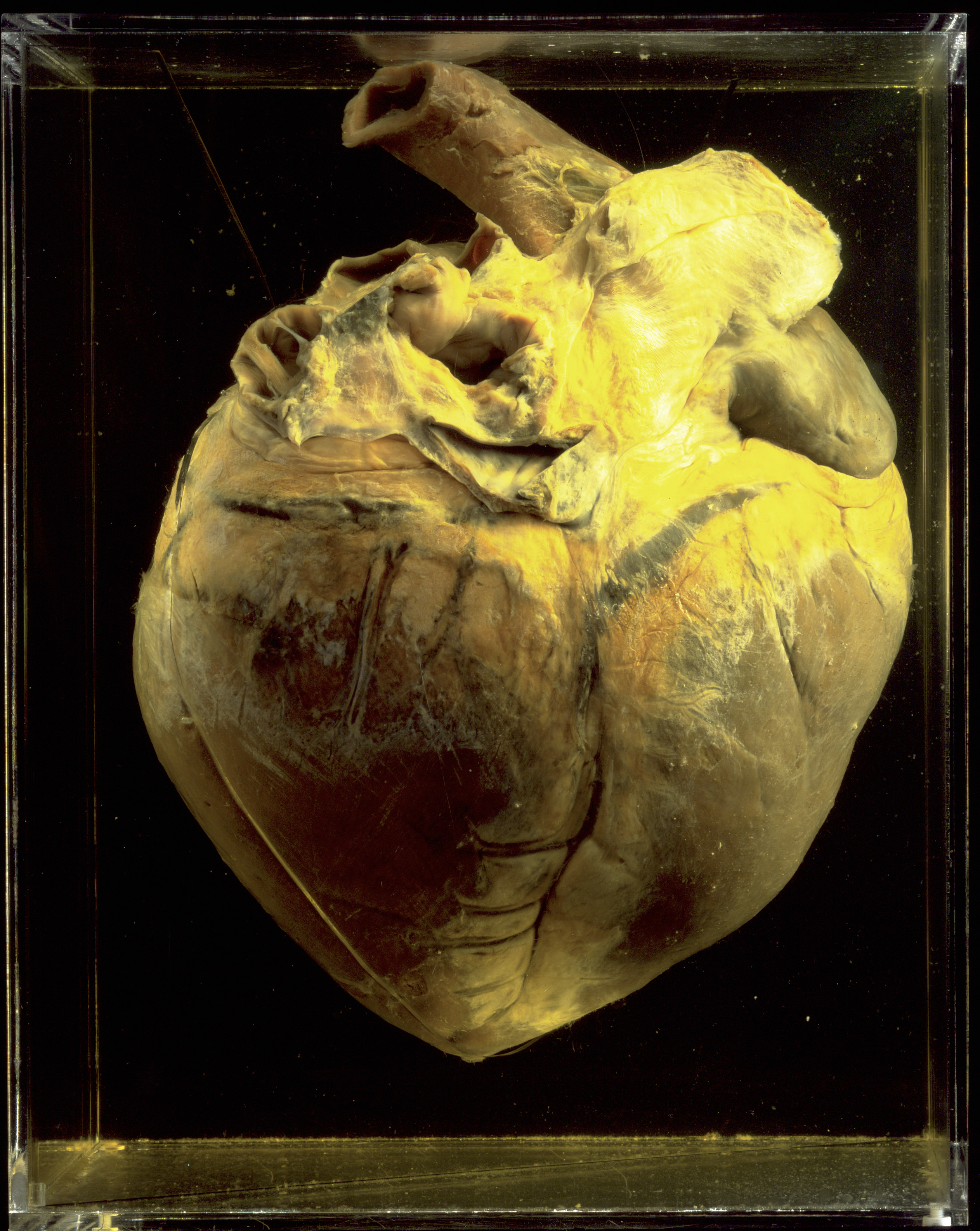 Phar Lap's heart on display at the National Museum of Australia.