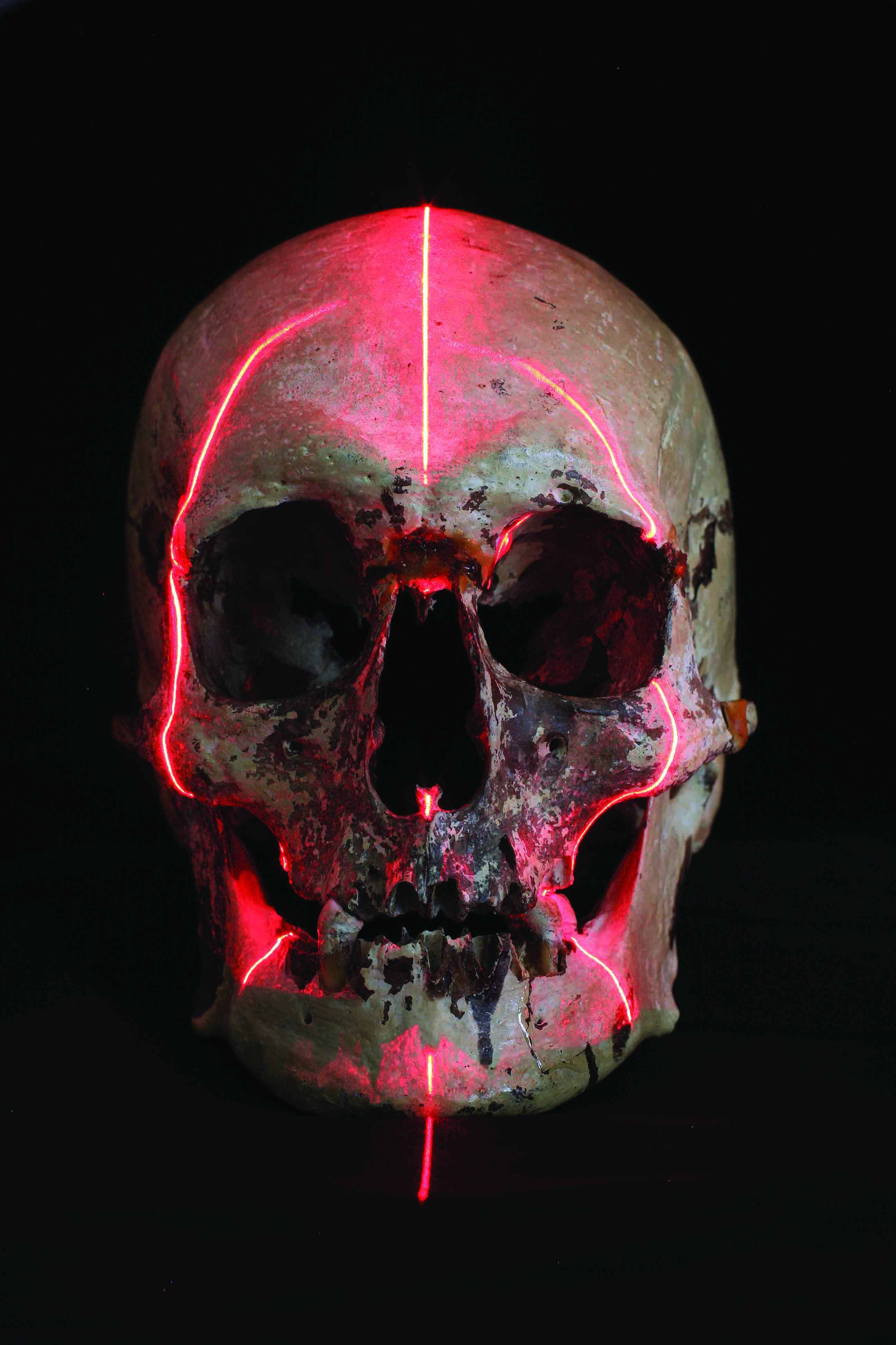 The 'Baxter skull' with CT scan lines.