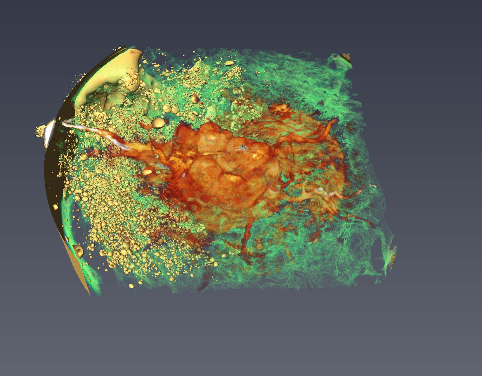 3D CT Reconstruction of an excised human breast.