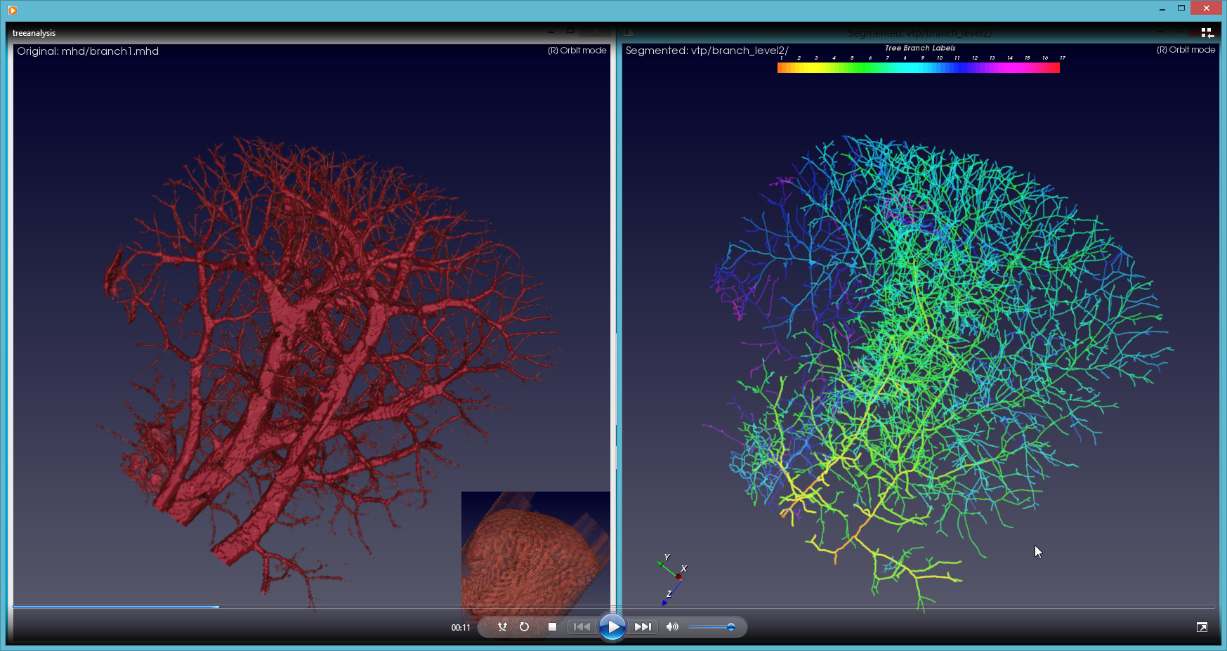 Screen shot of computer software tool showing blood vessels.